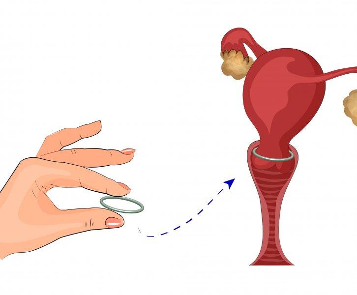 Ik kreeg een trombosebeen na gebruik van de NuvaRing